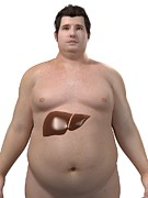 Obese Prints - Obese Mans Liver, Artwork Print by Sciepro