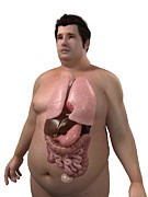 Obese Prints - Obese Mans Organs, Artwork Print by Sciepro