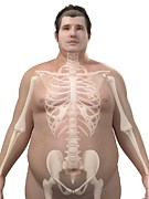 Obese Prints - Obese Mans Skeleton, Artwork Print by Sciepro