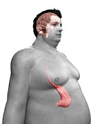 Obese Prints - Obese Mans Stomach, Artwork Print by Sciepro