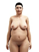 Obese Prints - Obese Woman, Artwork Print by Sciepro