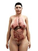 Obese Prints - Obese Womans Organs, Artwork Print by Sciepro