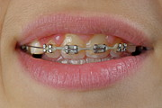 Adolescence Prints - Orthodontic braces on teeth Print by Sami Sarkis