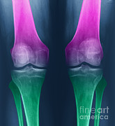Osteoarthritis Of The Knees Print by Ted Kinsman