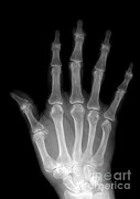 Hands Images Photos - Osteoporosis And Degenerative Arthritis by Medical Body Scans