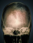 Osteology Posters - Osteoporosis In The Skull, X-ray Poster by Zephyr