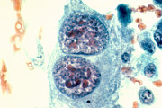 Pap Stain Posters - Osteosarcoma Cells Poster by Science Source