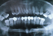 Radiogram Prints - Panoramic Dental X-ray Print by Science Source