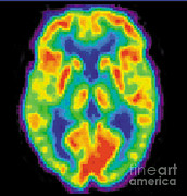 Diagnostic Prints - Pet Scan Of 20-year-old Brain, 1 Of 2 Print by Science Source