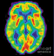 Diagnostic Prints - Pet Scan Of 80-year-old Brain, 2 Of 2 Print by Science Source