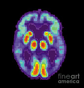 Diagnostic Prints - Pet Scan Of Alzheimers Disease Brain, 2 Print by Science Source