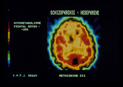 Mental Condition Prints - Pet Scan Of Brain Of Person With Schizophrenia Print by Cnri Schizophrenia. Coloured Pet (positron Emission