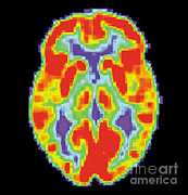 Diagnostic Prints - Pet Scan Of Normal Brain, 1 Of 2 Print by Science Source