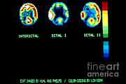 Human Brain Art - Pet Scan Showing Epileptic Seizure by Science Source