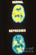 Mental Condition Posters - Pet Scans, Deoxyglucose Study Poster by Science Source