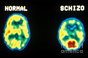 Comparison Framed Prints - Pet Scans, Normal And Schizophrenic Framed Print by Science Source