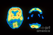 Human Brain Art - Pet Scans Of Normal And Alzheimers Brain by Science Source