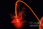 Laser Beam Prints - Photodynamic Therapy Print by Photo Researchers