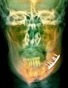 Treated Photos - Pinned Broken Jaw, X-ray by