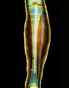 Tibia Posters - Pinned Broken Leg, X-ray Poster by