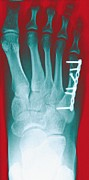 Screwed Prints - Pinned Foot Bone Fracture, X-ray Print by Miriam Maslo