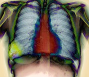 Lungs Posters - Pneumonia, X-ray Poster by Du Cane Medical Imaging Ltd