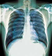 Human Condition Metal Prints - Pneumothorax, X-ray Metal Print by Du Cane Medical Imaging Ltd