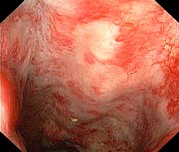 Endoscope View Photos - Rectal Damage From Radiation Therapy by Gastrolab