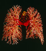 Resin Photos - Resin Cast Of Pulmonary Arteries And Bronchi by Martin Dohrnroyal College Of Surgeons .