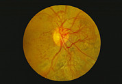 Eyeball Prints - Retina Damage In Diabetes Print by Paul Parker