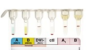 Result Prints - Rhesus Test On Blood: Positive Result Print by Doncaster And Bassetlaw Hospitals