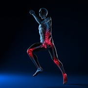 Sprinting Prints - Running Injuries, Conceptual Artwork Print by Sciepro