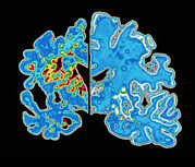Cerebrum Prints - Sectioned Brains: Alzheimers Disease Vs Normal Print by Pasieka
