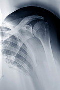 X-ray Image Art - Shoulder X-ray by Sami Sarkis