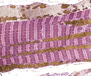 Skeletal Posters - Skeletal Muscle And Tendon, Tem Poster by Steve Gschmeissner