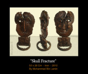 Iron  Sculptures - Skull Fracture by MBL Binlamin
