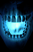 Skull Digital Art - Skull, Teeth And Tongue by MedicalRF.com