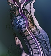 Disc Photos - Slipped Disc, Mri Scan by Zephyr