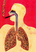Disease-causing Prints - Smoking And Lungs Print by Hans-ulrich Osterwalder
