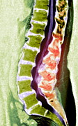 Spine Degeneration, Mri Scan Print by Du Cane Medical Imaging Ltd