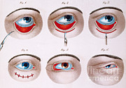 Drooping Posters - Surgery To Correct Lazy Lower Eyelid Poster by Science Source