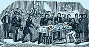 Pre-19th Framed Prints - Surgery Without Anesthesia, Pre-1840s Framed Print by Science Source