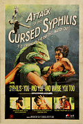 Std Framed Prints - Syphilis Poster Framed Print by Andrew Fare