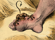 Inflammation Photos - The Gout by Science Source