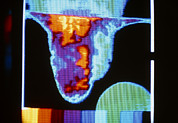 Scrotum Framed Prints - Thermogram Of Varicocele In Right Of Scrotum Framed Print by