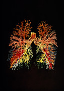Lungs Posters - Trachea And Bronchi Of The Lungs Poster by