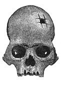 Alternative Skull Prints - Trepanning Print by Granger