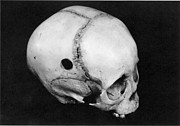 Alternative Skull Prints - Trepanning: Skull Print by Granger