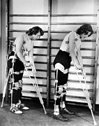 Crutches Posters - Two Adult Women Polio Victims With Leg Poster by Everett