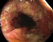 Endoscope View Posters - Ulcerative Colitis In The Sigmoid Colon Poster by Gastrolab